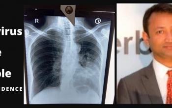 Coronavirus can be cured says natural health consultant Subodh Gupta