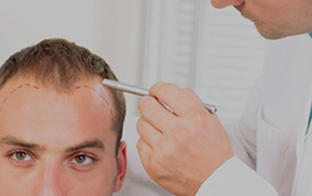 How Much Does A Hair Transplant Cost In Calicut?