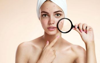 The Typical Monsoon Skin Issues And Their Solutions