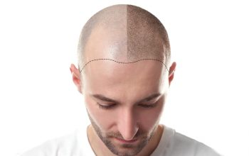 Are Hair Transplants Expensive?