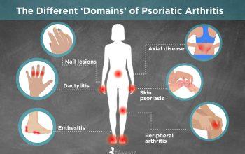 Understanding the Different Types of Arthritis