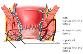 Know Everything About How To Get Pain Free Anal Fistula Treatment In Bangalore