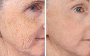 Laser Treatment of Wrinkles