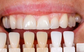 Restore your Teeth Color Through Bleaching