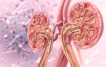 Expert Kidney Care with Lupus Specialist in Texas