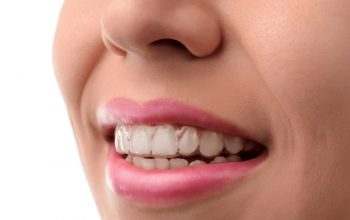 Straighten Your Misaligned Teeth Invisibly with Invisalign