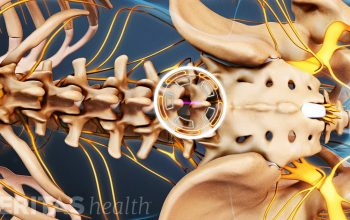 When Might You Need Spine Surgery?