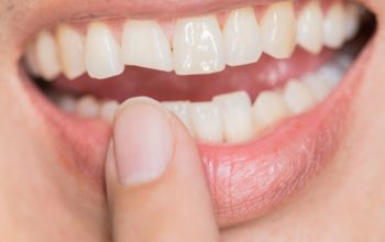 Blending A Warm, Patient-Centric Approach with Extensive Training in Restorative, Preventive & Cosmetic Dentistry
