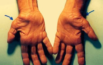 Carpal Tunnel Syndrome; What You Should Know
