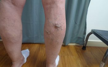 Providing Exceptional Varicose Veins Solutions in California