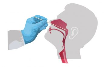 Role of Nasal Swabs in COVID-19 Tests