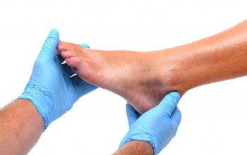 Some crucial reasons to visit a podiatrist